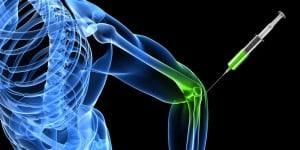 Cortisone Injections (£230) London by Consultant Radiologist